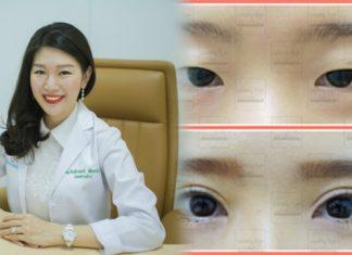 ทําตาสองชั้น คุณหมอรวงข้าว Lovely Eye By Dr.Roungkaw Clinic