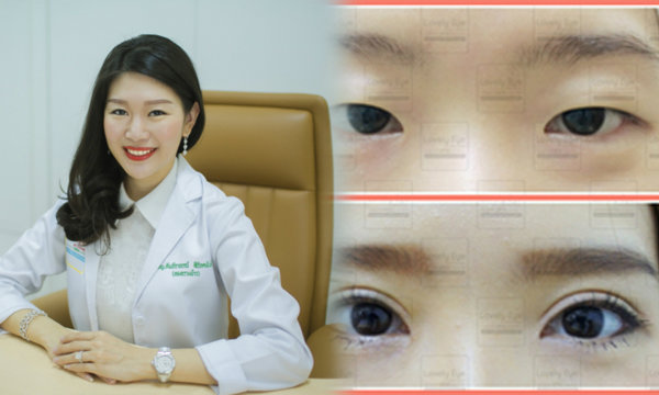 http://www.naadeng.com/eyelid-surgery/
