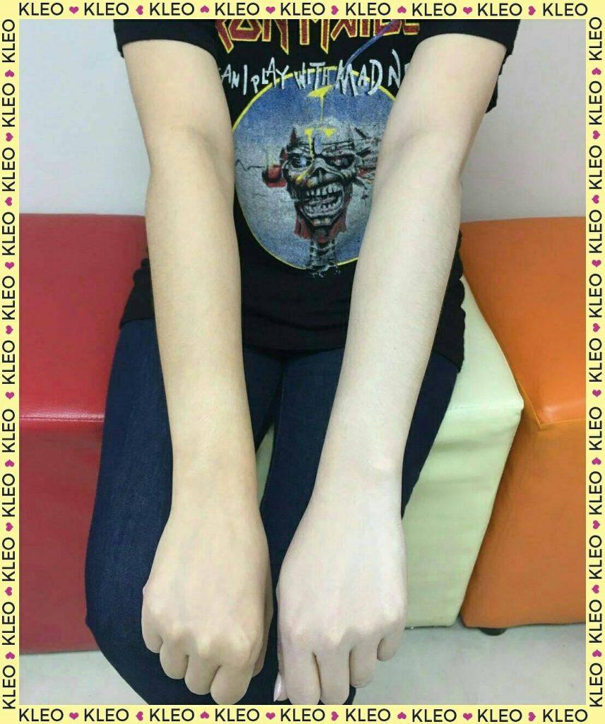 รีวิวครีมกันแดด KLEO DD White Body Cream SPF 30PA+++