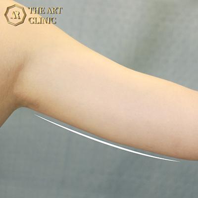 ดูดไขมันต้นแขน The Art Clinic