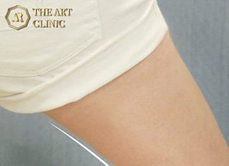 ดูดไขมันต้นขา The Art Clinic
