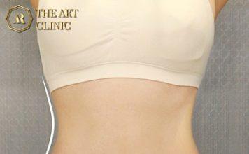 ดูดไขมันหน้าท้อง The Art Clinic
