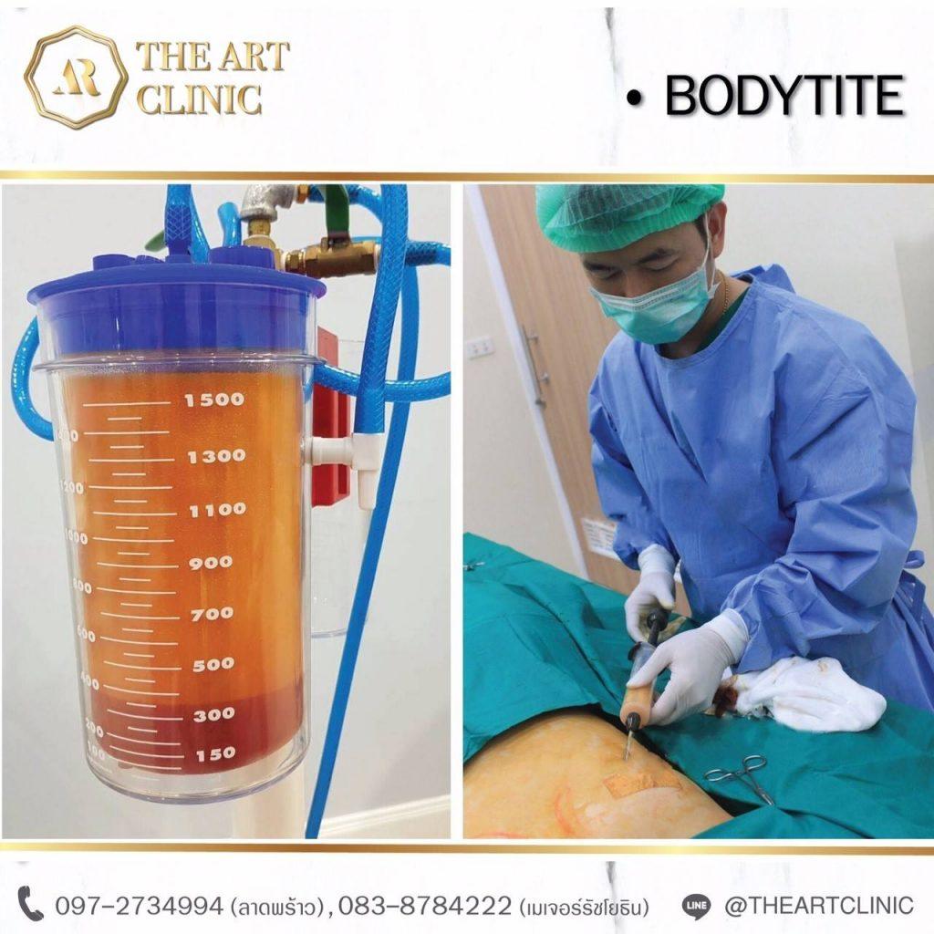 ดูดไขมัน The Art Clinic