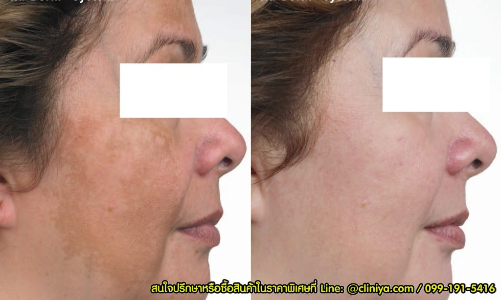 รีวิว ครีมทาฝ้า Expederm Tri-Action for Melasma with Melatrio